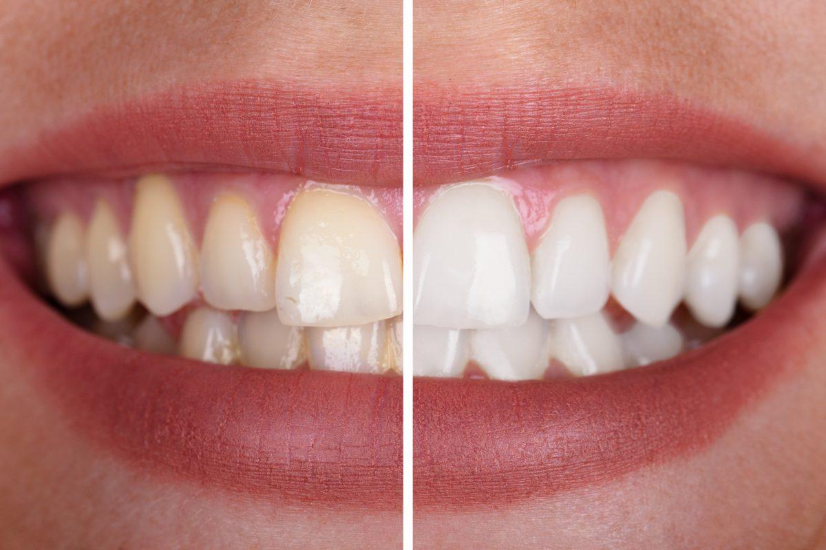 Lähikuva hymyilevän naisen hampaista ennen ja jälkeen hampaiden valkaisun.