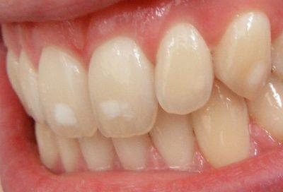 Fluoroosi johtuu liiallisesta fluorin saannista hampaan kehitysvaiheen aikana ja ilmenee valkoisina värimuutoksina.