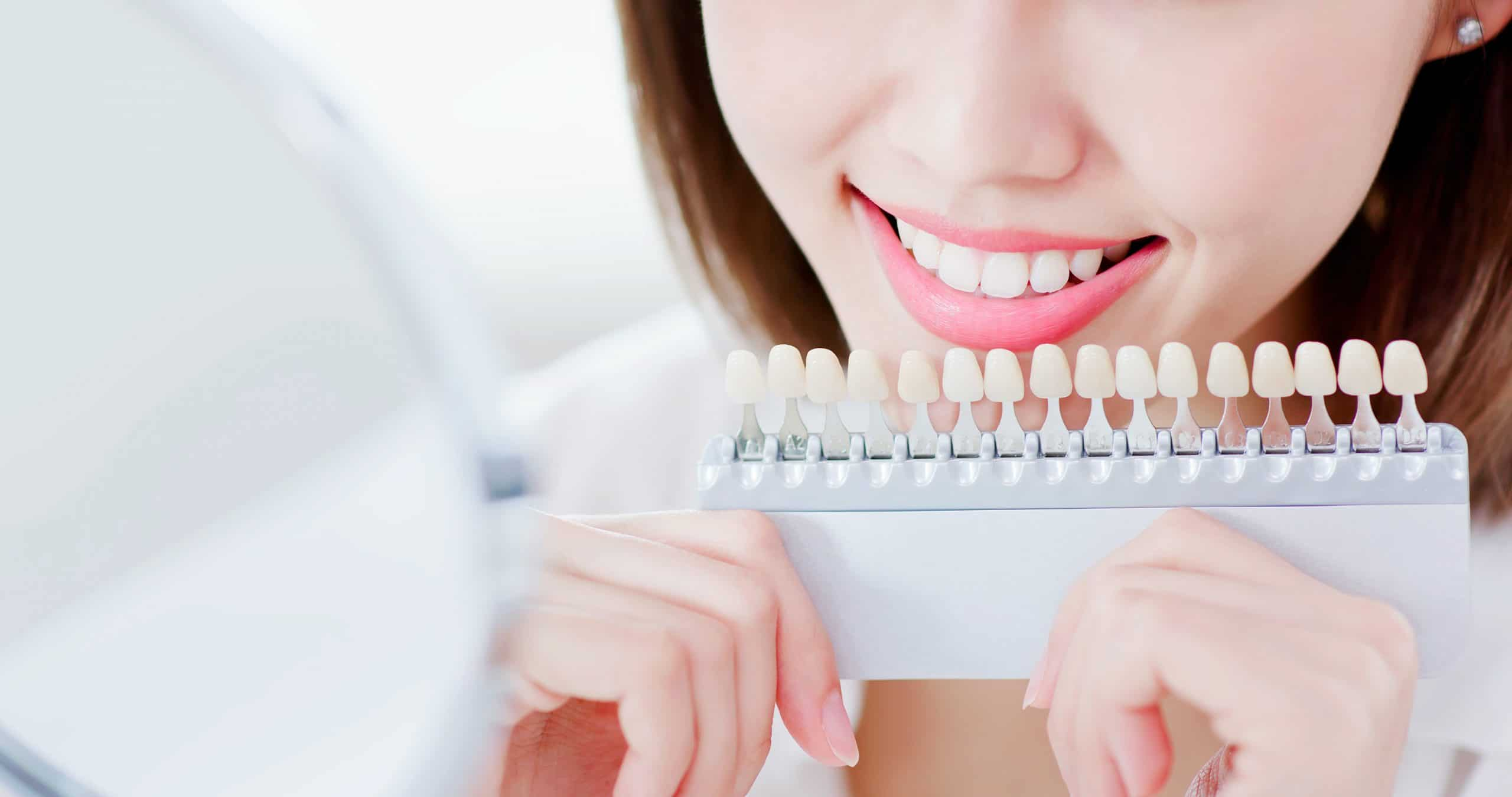 Kuva nuoresta naisesta vertailemassa hampaiden valkaisun tuloksia värikarttaan.